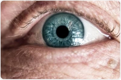 Alzheimer's proteins linked to age-related vision loss
