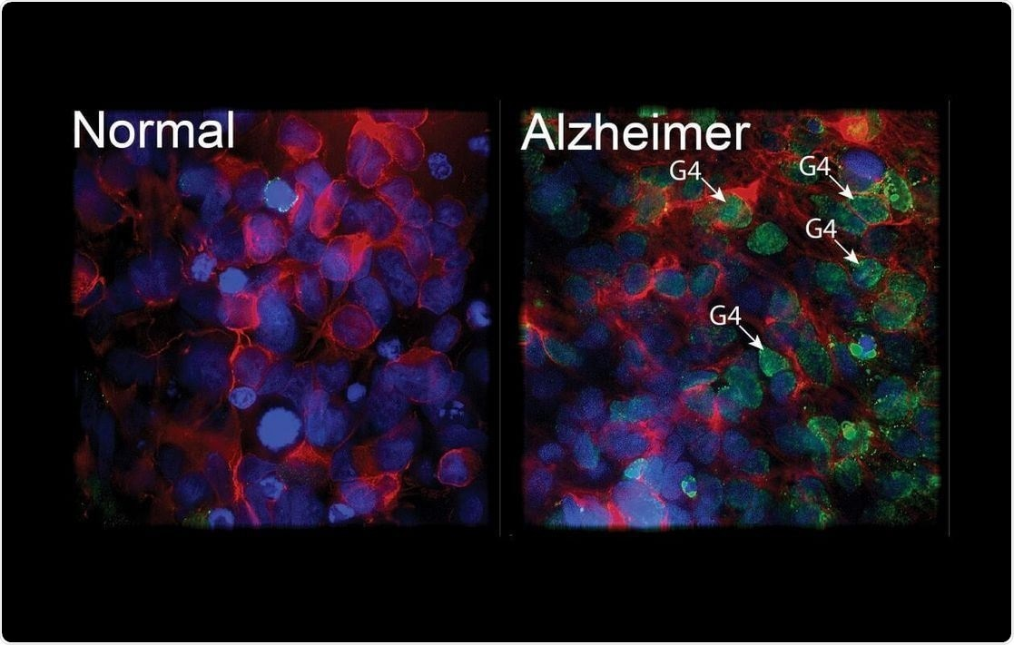 New function of BMI1 gene can protect against Alzheimer's disease