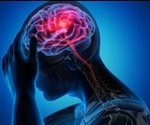 "New genetic evidence points to novel therapies for ""silent"" stroke"