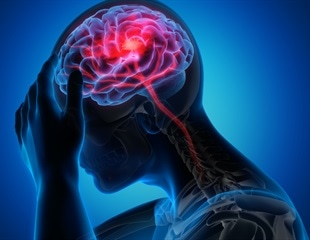 """New genetic evidence points to novel therapies for """"silent"""" stroke"""