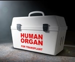 The Immunology of Organ Transplantation