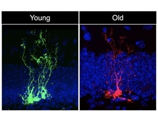 Study shows that neural stem cells age quickly