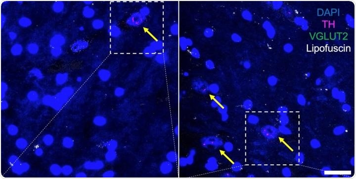 Study identifies single protein key to regulating sex differences in Parkinson's disease