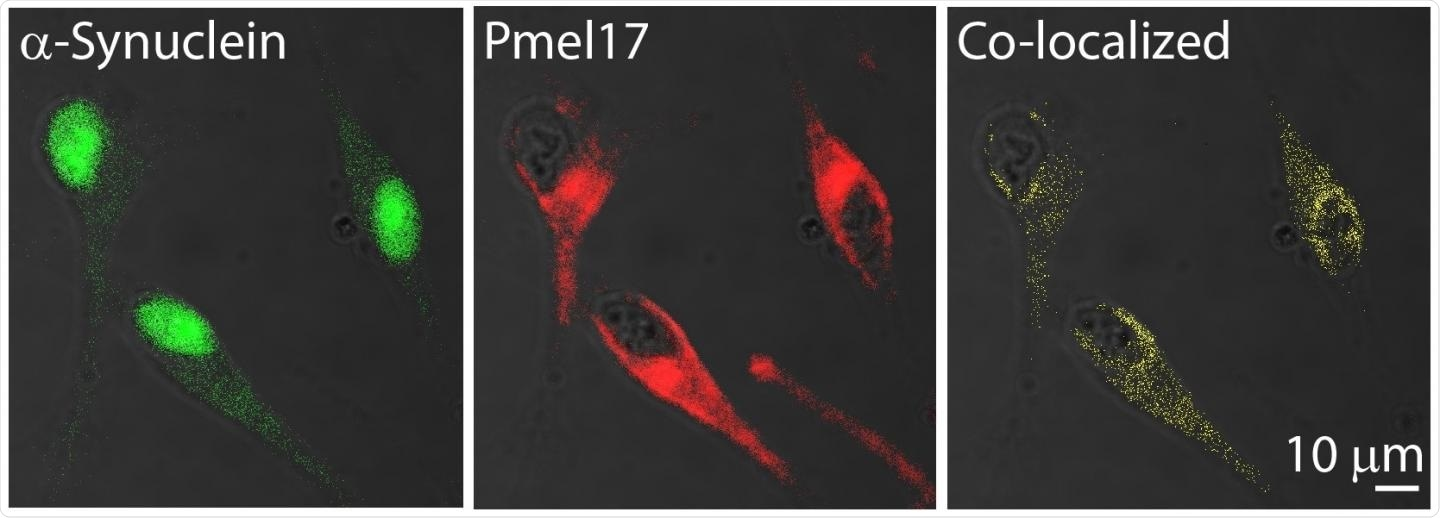Study finds an amyloid link between melanoma and Parkinson's disease