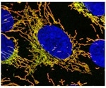 Study discovers that mutations in a specific gene cause mitochondrial disease