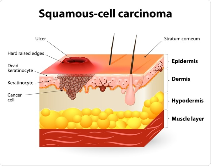 Squamous-cell Carcinoma