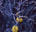 Genetic Testing in the fight against Alzheimer's