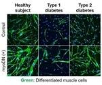 Study examines if myoDN improves myoblast differentiation exacerbated by diabetes