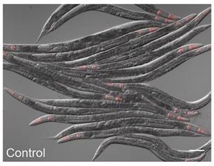 Worm cells sense metabolism changes to stimulate their defense against pathogens