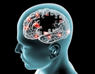 Study identifies DNA alterations that underpin brain and cognitive decline in the elderly