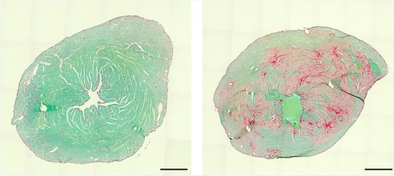Single mutation leads to rare genetic muscle disease