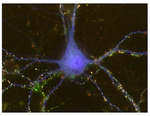 Study shows astrocytes induce sex differences during brain development