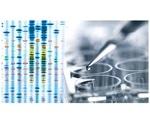 New study could help develop novel treatments for neurodegenerative diseases