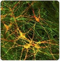 Study reveals neurotransmitter release impairments in schizophrenia patients