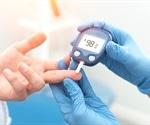 Molecular Cell Biology of Diabetes