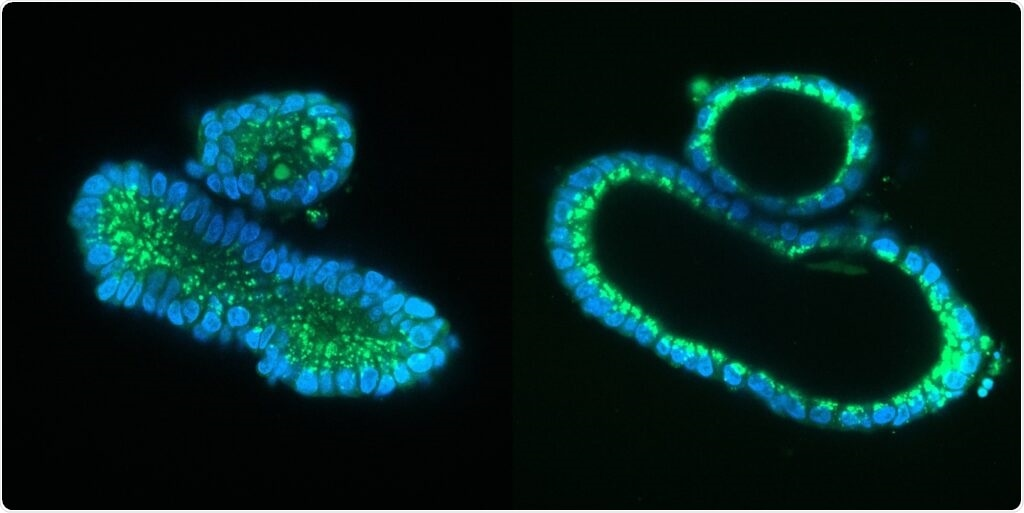 Researchers use prime editing to correct mutations causing cystic fibrosis in organoids