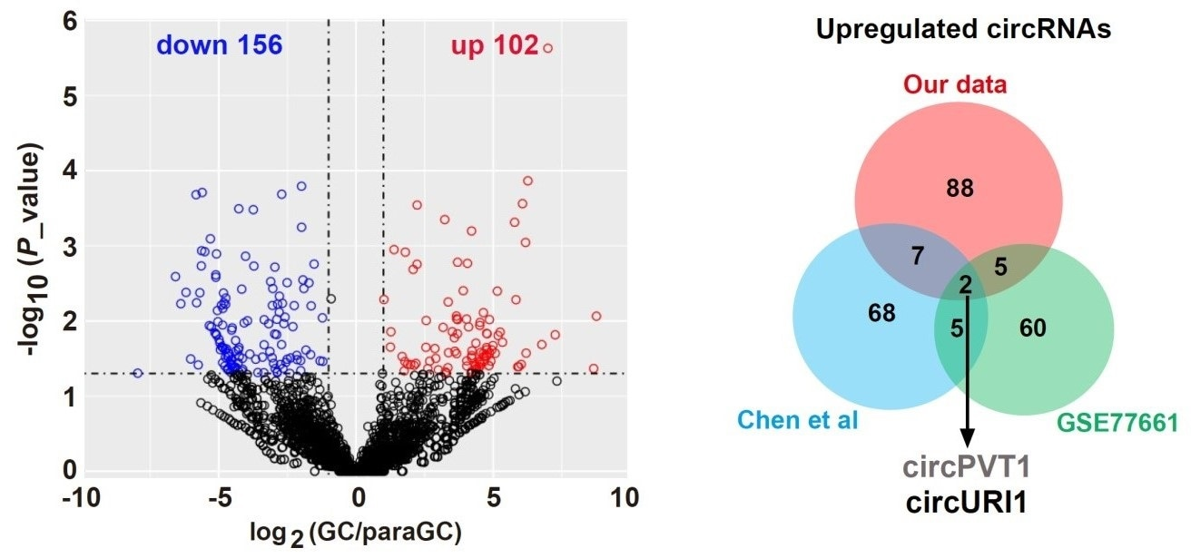 Study finds the link between circular RNA and alternative splicing in gastric cancer