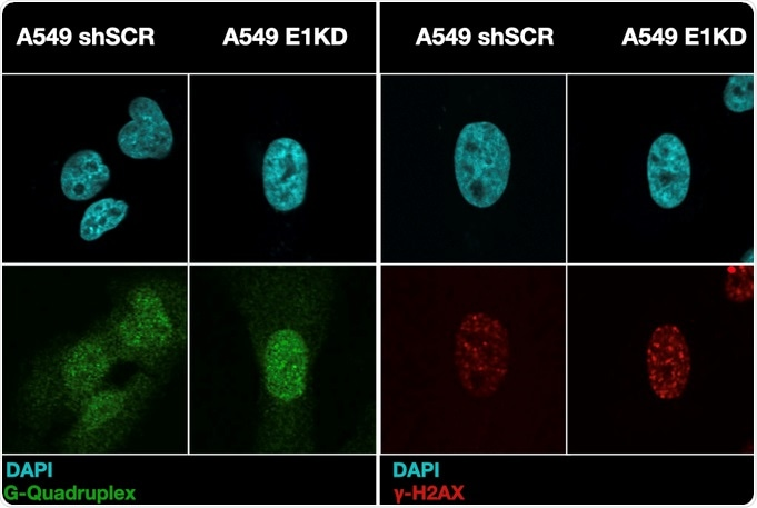 Tumor suppressor protein binding to RNA also binds DNA, says study
