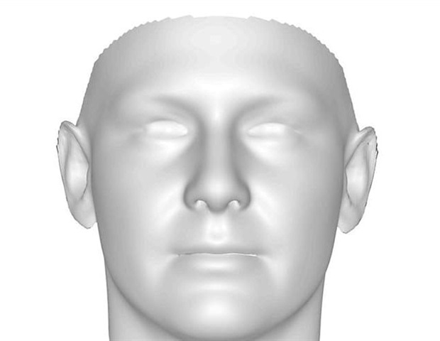 Study finds greater facial asymmetry in parents of autistic individuals