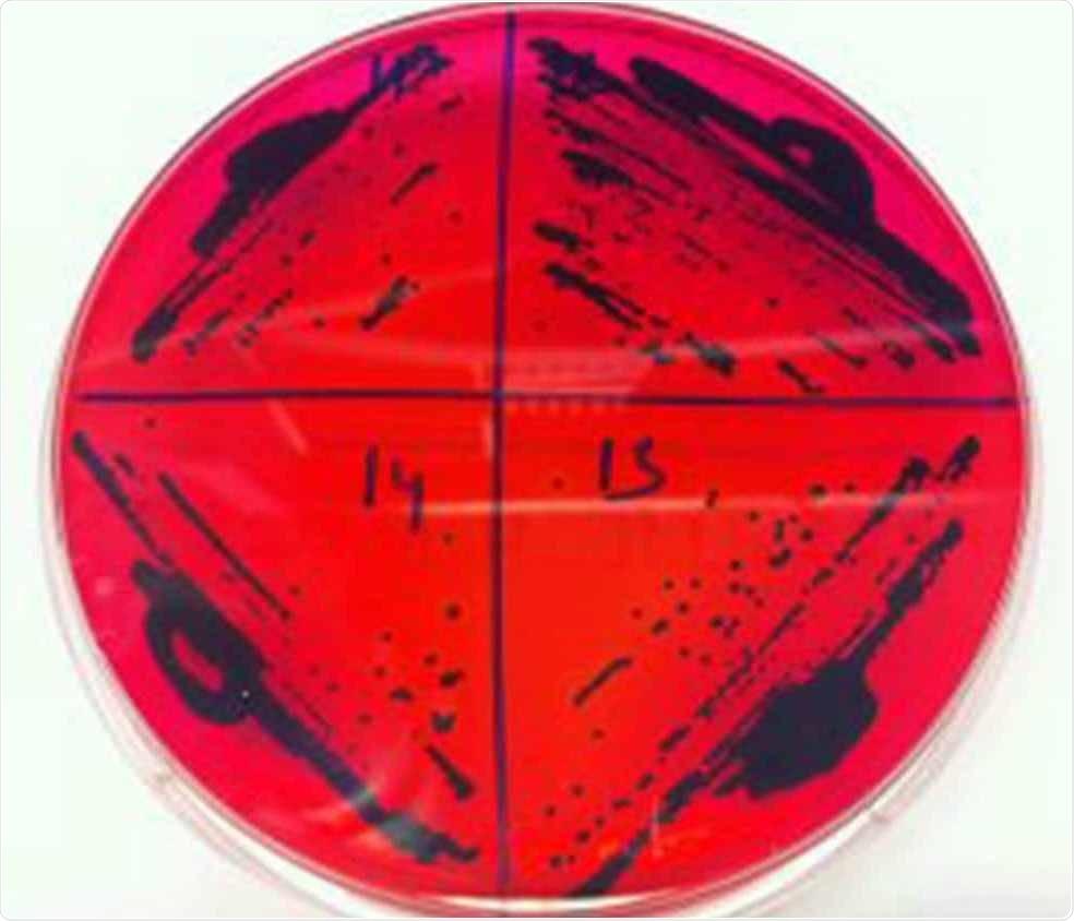 Drug-resistant Salmonella serovar Enteritidis genome sequenced by experts