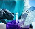 Insight into Biobanking