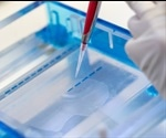 Electrophoresis: An Overview