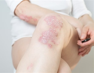 Study unravels novel therapeutic option for the treatment of psoriasis