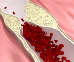 New study shows how T cells function in atherosclerosis