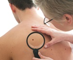 Key blood marker could offer the most effective treatment for melanoma