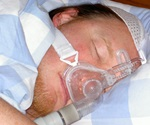 Study shows sleep apnea may be a risk factor for COVID-19