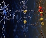 Study confirms correlation between gut microbiota and Alzheimer's disease