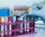Specific metabolites can predict COVID-19 mortality