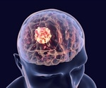 Changes in glioblastoma cells influence the effect of different drugs, shows study