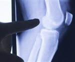 Novel molecule shown to have potential therapeutic effects for arthritis