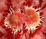 Credit-card sized tool provides better understanding on breast cancer metastasis