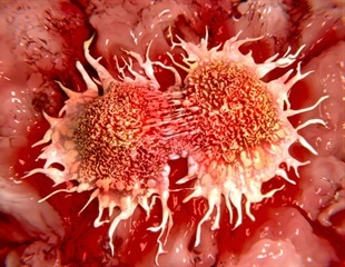 White blood cells can be trained to attack tumor cells