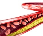 Cholesterol-lowering medication improves function of the coronary arteries