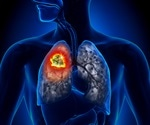 Clinical lipidomics in understanding of lung cancer: Opportunity and challenge