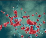 Study identifies causative factors for neurodegenerative diseases