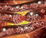 Protein Abundant In The Heart Plays Key Role In Blood Clotting