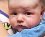 Gene Defects Linked To Eczema, Wheeze And Nasal Disease Among Babies