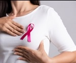 Researchers Find New Breast Cancer Gene In Young People