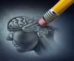 Alzheimer's: New Gene May Drive Earliest Brain Changes
