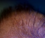 Study pinpoints the miRNA that promotes hair follicle growth