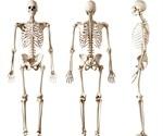 Applications of Bone Proteomics