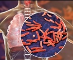 A New Way of Killing Tuberculosis