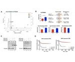 Highly expressed DDX1 gene is associated with poor survival of neuroblastoma